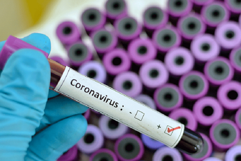 How hotels, hospitals and airports can combat COVID-19